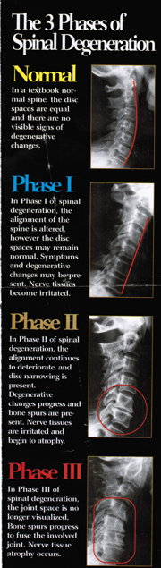 3-phases-of-Spinal-Degeneration-resized_1.png